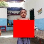 【衝撃】難病バッド・キアリ症候群になったパキスタンの9歳男子、腹が・・・・・(画像)