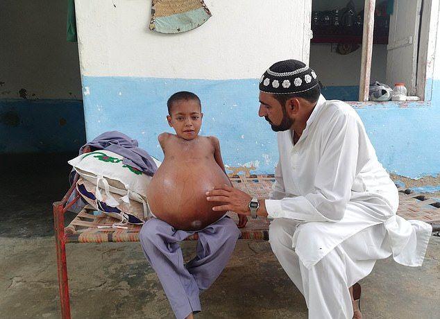【衝撃】難病バッド・キアリ症候群になったパキスタンの9歳男子、腹が・・・・・(画像)・1枚目