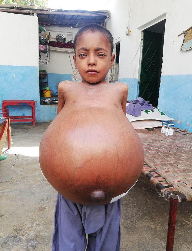 【衝撃】難病バッド・キアリ症候群になったパキスタンの9歳男子、腹が・・・・・(画像)・2枚目