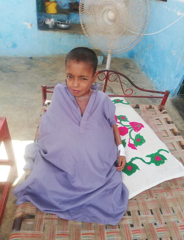 【衝撃】難病バッド・キアリ症候群になったパキスタンの9歳男子、腹が・・・・・(画像)・4枚目