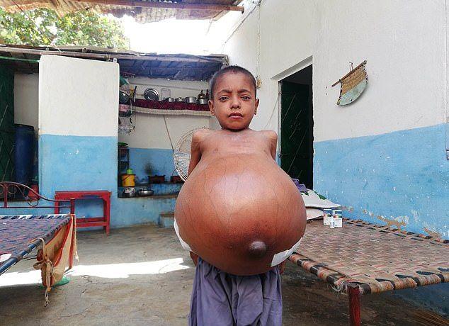 【衝撃】難病バッド・キアリ症候群になったパキスタンの9歳男子、腹が・・・・・(画像)・5枚目