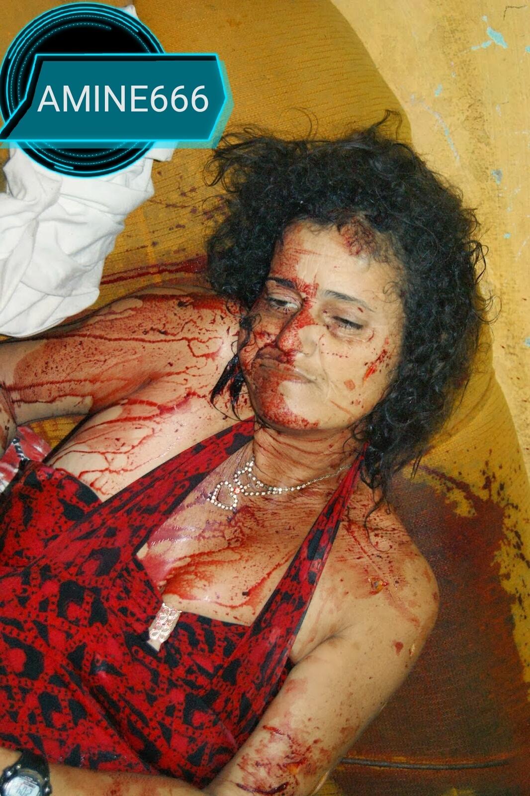 【閲覧注意】麻薬絡みのトラブルで殺された外国人女性、表情ヤバい・・・・・(画像)・1枚目