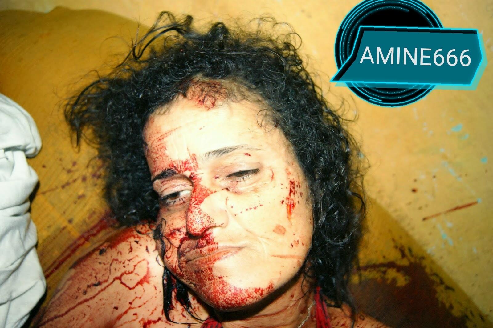 【閲覧注意】麻薬絡みのトラブルで殺された外国人女性、表情ヤバい・・・・・(画像)・5枚目