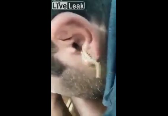 【衝撃】耳に異物がと病院を訪れた男性、耳から出てきたのは・・・・・(動画)・3枚目