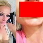 【衝撃】唇の整形手術代をケチったイギリス人女性、とんでもない唇にされる・・・・・(画像)