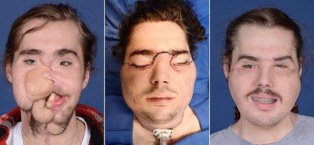 【閲覧注意】アルコール依存症で自分の顔を撃った男性、生き残って他人の顔を移植される・・・・・(画像)・3枚目