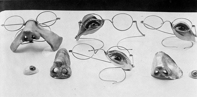 【神技】第一次世界大戦の負傷兵を救ったニュージーランド人医師、これは神技だろwwwww(画像)・2枚目