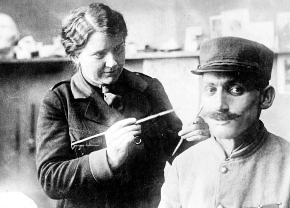 【神技】第一次世界大戦の負傷兵を救ったニュージーランド人医師、これは神技だろwwwww(画像)・3枚目