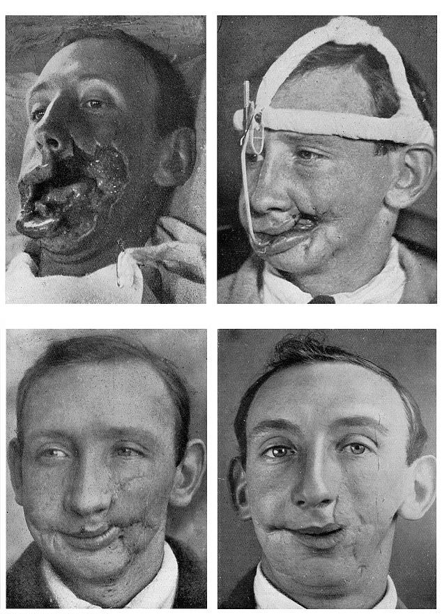【神技】第一次世界大戦の負傷兵を救ったニュージーランド人医師、これは神技だろwwwww(画像)・6枚目