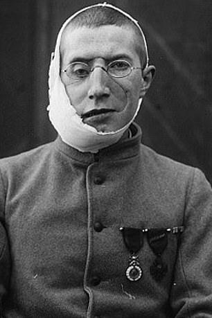 【神技】第一次世界大戦の負傷兵を救ったニュージーランド人医師、これは神技だろwwwww(画像)・8枚目