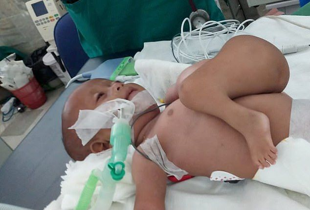 【神の使い】インドで生まれた結合双生児の少女、無事分離手術が成功する!!(画像)・2枚目