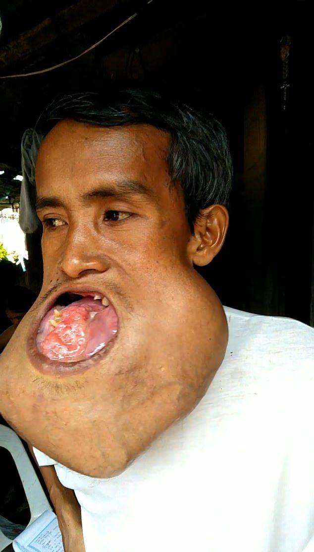 【衝撃】バスケ試合の負傷で顎に腫瘍が出来た男性、7年後頭くらいのサイズまで成長する・・・・(画像)・1枚目