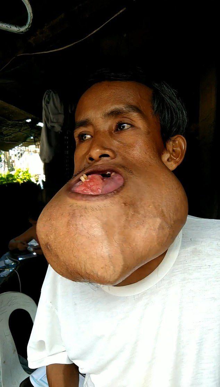 【衝撃】バスケ試合の負傷で顎に腫瘍が出来た男性、7年後頭くらいのサイズまで成長する・・・・(画像)・2枚目