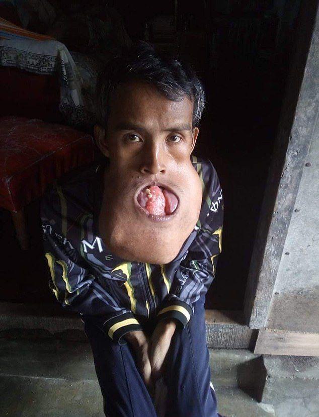 【衝撃】バスケ試合の負傷で顎に腫瘍が出来た男性、7年後頭くらいのサイズまで成長する・・・・(画像)・4枚目