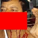 【閲覧注意】インドの49歳男性、隣人との喧嘩の末顔面にとんでもないモノをぶっ刺される!!(画像)