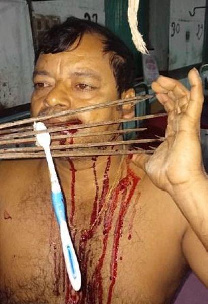 【閲覧注意】インドの49歳男性、隣人との喧嘩の末顔面にとんでもないモノをぶっ刺される!!(画像)・1枚目