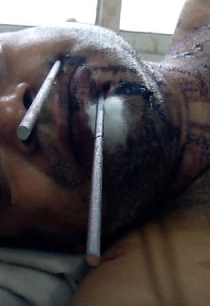 【閲覧注意】インドの49歳男性、隣人との喧嘩の末顔面にとんでもないモノをぶっ刺される!!(画像)・2枚目