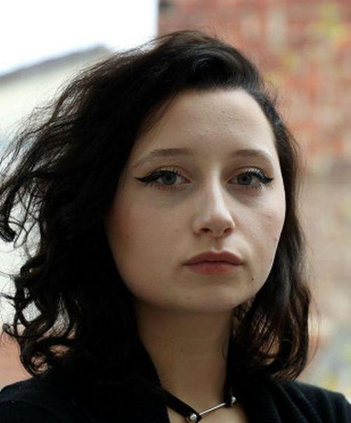 【衝撃】染髪したフランス人女性、アレルギーで顔が大変な事に・・・・・(画像)・1枚目