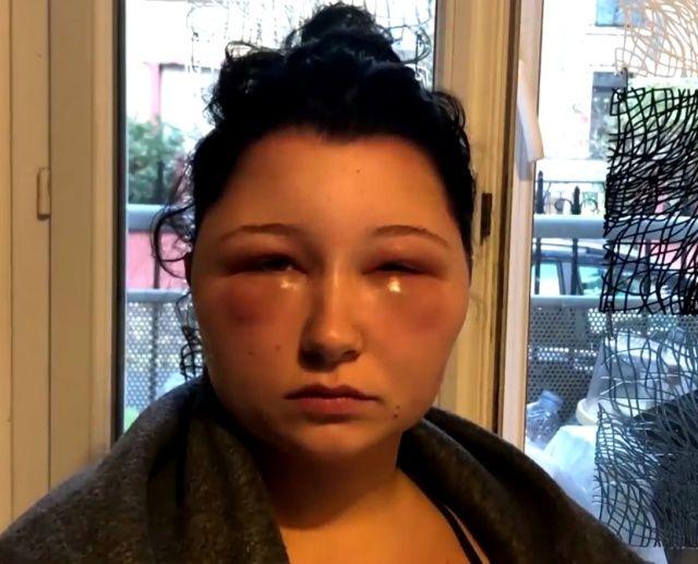 【衝撃】染髪したフランス人女性、アレルギーで顔が大変な事に・・・・・(画像)・7枚目