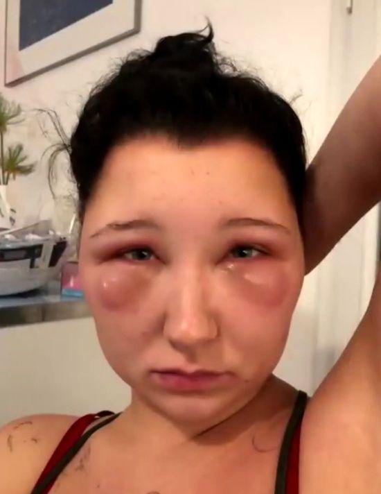 【衝撃】染髪したフランス人女性、アレルギーで顔が大変な事に・・・・・(画像)・8枚目