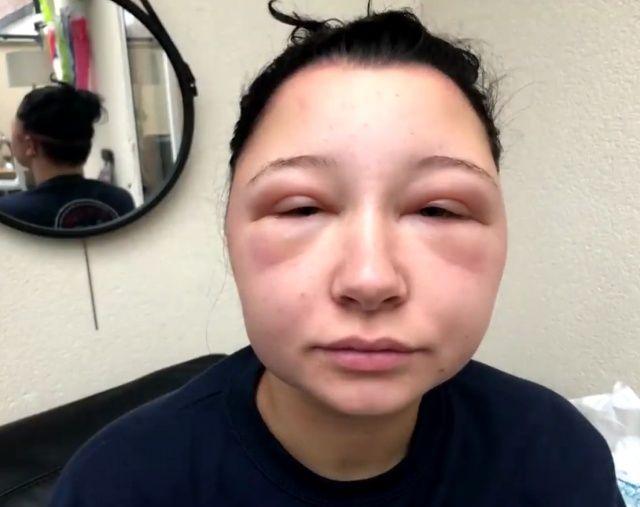 【衝撃】染髪したフランス人女性、アレルギーで顔が大変な事に・・・・・(画像)・9枚目