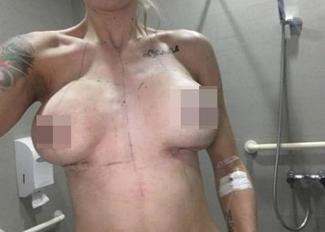 【インプラント失敗】産後の垂れおっぱい改善の為に手術を受けた女性、失敗する・・・・・(画像)・5枚目