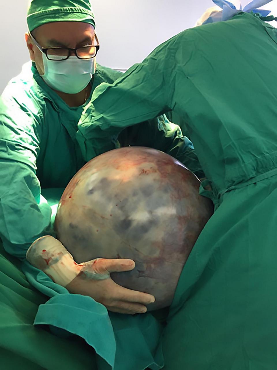 【衝撃】32㎏もの腫瘍を切除したコスタリカの女性、よく生きてたな。。。(画像)・1枚目