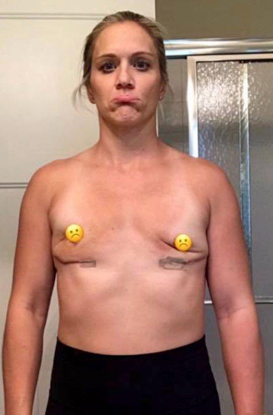 【がっかりおっぱい】豊胸手術で理想のおっぱいになったまんさん、細菌感染して泣く泣く摘出・・・・・(画像)・3枚目