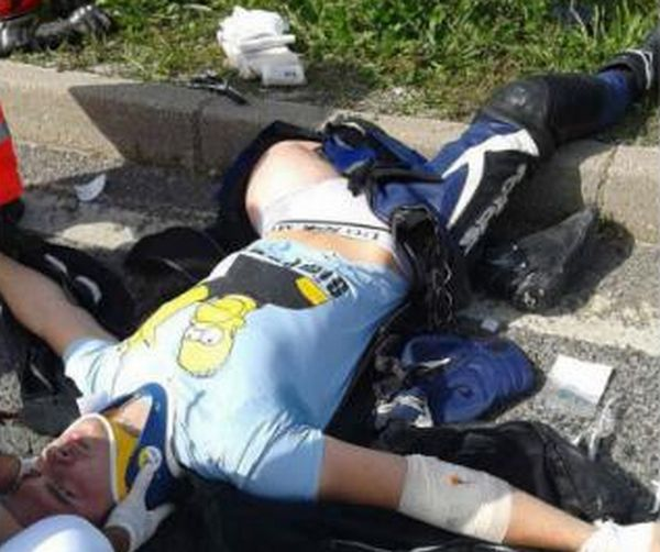 【リサイクル】事故で大腿骨が脚から飛び出した男性、自らの骨を加工してナイフのグリップにしてしまう!!(画像)・1枚目