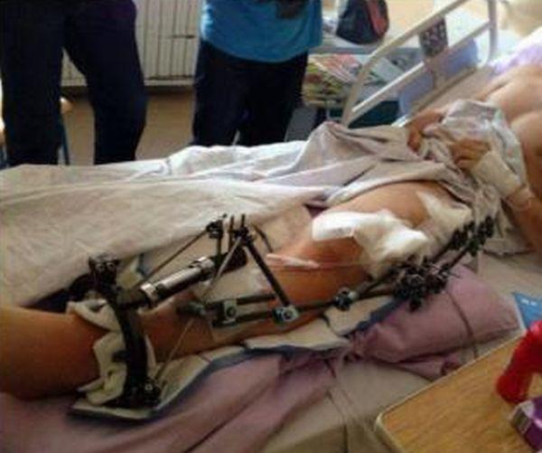 【リサイクル】事故で大腿骨が脚から飛び出した男性、自らの骨を加工してナイフのグリップにしてしまう!!(画像)・2枚目