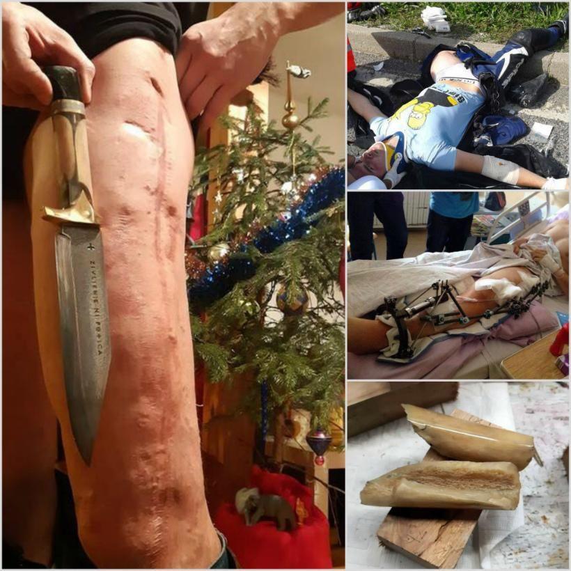【リサイクル】事故で大腿骨が脚から飛び出した男性、自らの骨を加工してナイフのグリップにしてしまう!!(画像)・4枚目