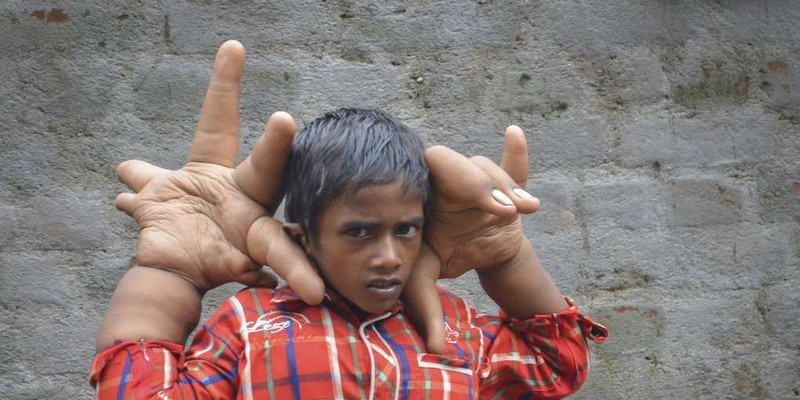 【ビックリ人間】世界の驚異的な身体を持つ人達、少年の手が凄過ぎる・・・・・(画像)・1枚目