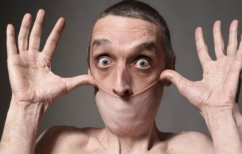 【ビックリ人間】世界の驚異的な身体を持つ人達、少年の手が凄過ぎる・・・・・(画像)・2枚目
