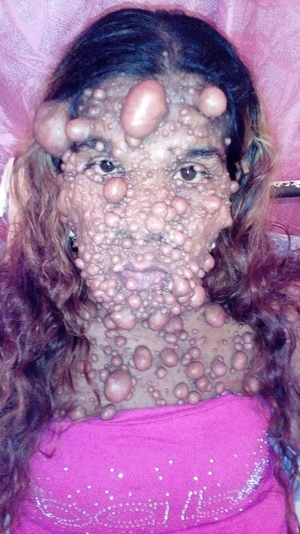 【閲覧注意】出産後に神経筋腫症という奇病を発症した女性、とんでもない事になる・・・・・(画像)・6枚目