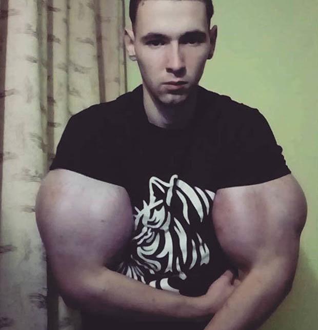 【二頭筋無双】リアルポパイのような腕を持つロシアの男性、何か身体のバランスが・・・・・(画像)・6枚目