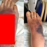 【衝撃】アフリカで虫に刺されて足の一部が壊死した男性、無菌ワームで見事に治療!!(画像)