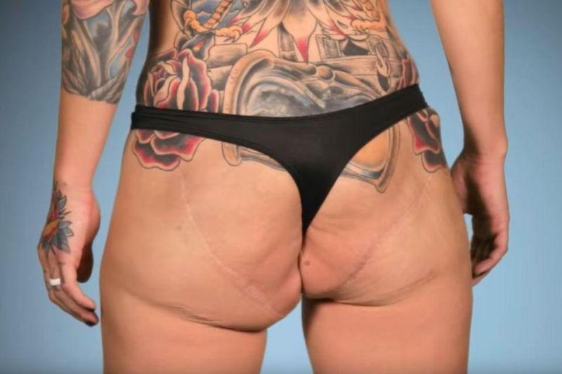 【絶望】お尻からインプラント手術で入れたシリコンを除去したダンサー女性、エライ事になる・・・・・(画像)・3枚目