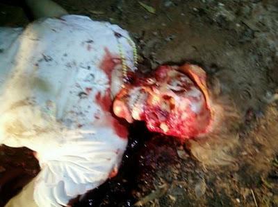 【超閲覧注意】ブラジルの54歳女性、黒魔術の教信者によって頭をひん剥かれる・・・・・(画像)・4枚目