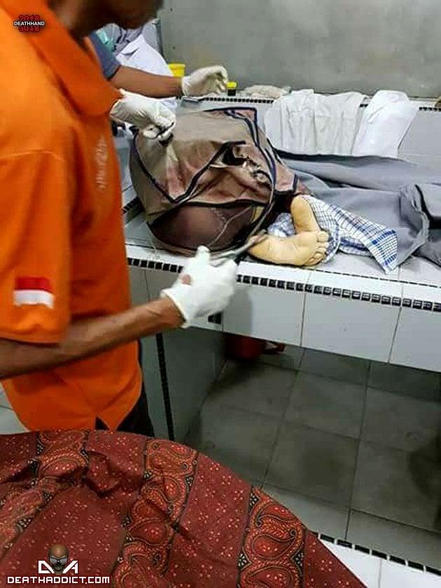 【閲覧注意】インドネシアで行方不明になった女子大生、レイプされとんでもない姿で発見される・・・・・(画像)・8枚目