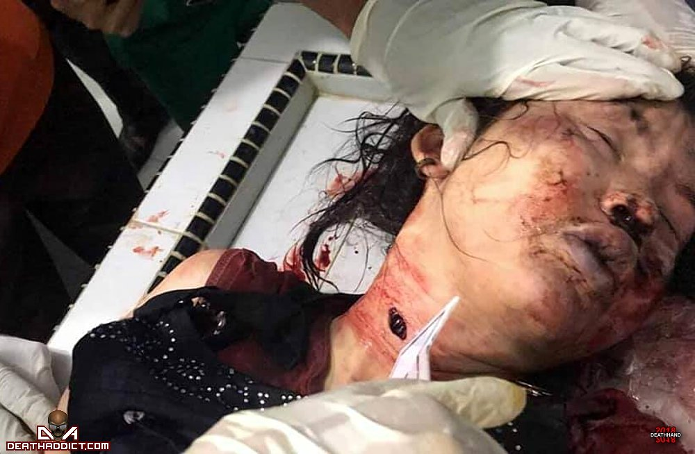【閲覧注意】インドネシアで行方不明になった女子大生、レイプされとんでもない姿で発見される・・・・・(画像)・18枚目