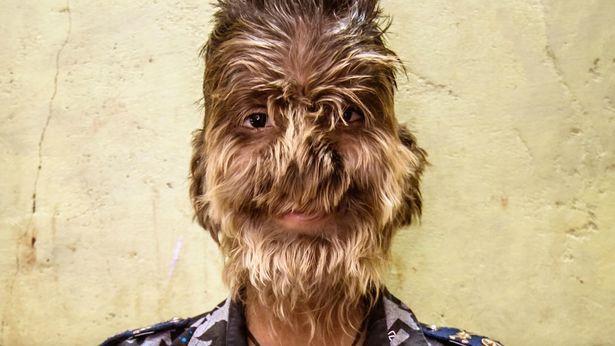 【衝撃】インドのリアル狼少年、多毛症少年の顔が凄過ぎる!!(画像)・1枚目
