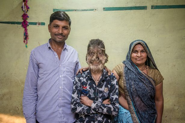【衝撃】インドのリアル狼少年、多毛症少年の顔が凄過ぎる!!(画像)・2枚目
