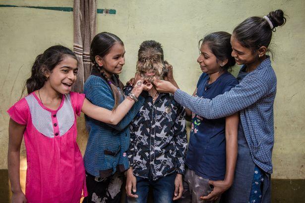 【衝撃】インドのリアル狼少年、多毛症少年の顔が凄過ぎる!!(画像)・3枚目