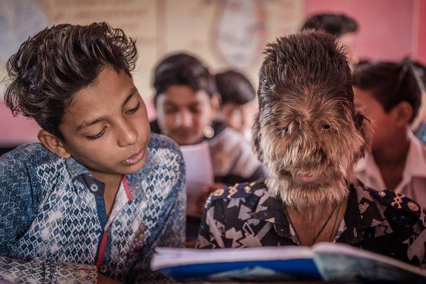 【衝撃】インドのリアル狼少年、多毛症少年の顔が凄過ぎる!!(画像)・4枚目