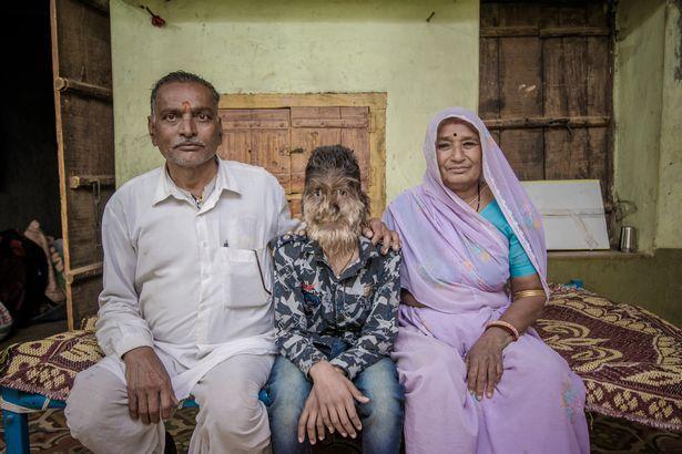 【衝撃】インドのリアル狼少年、多毛症少年の顔が凄過ぎる!!(画像)・5枚目