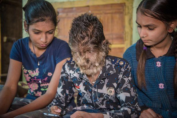 【衝撃】インドのリアル狼少年、多毛症少年の顔が凄過ぎる!!(画像)・6枚目