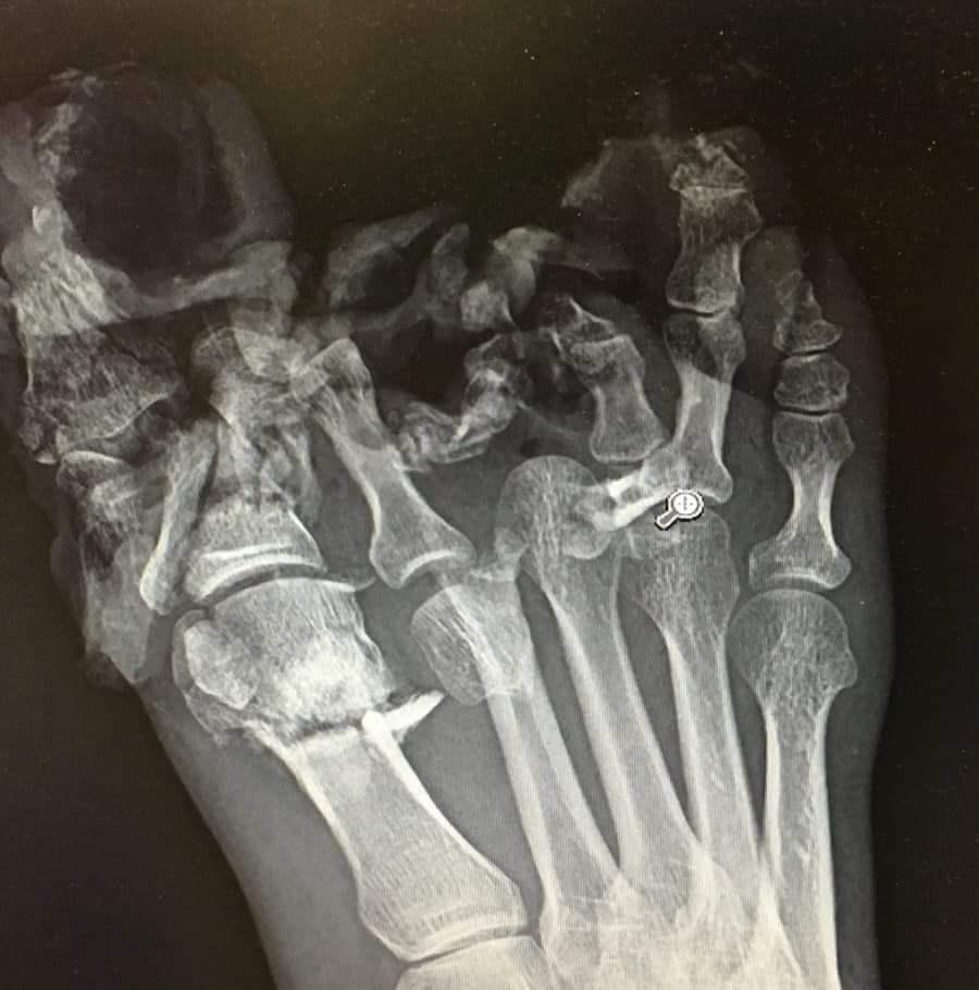 【グロ注意】重さ21㌧の機械部品に足を潰された作業員、グチャグチャになる・・・・・(画像)・1枚目
