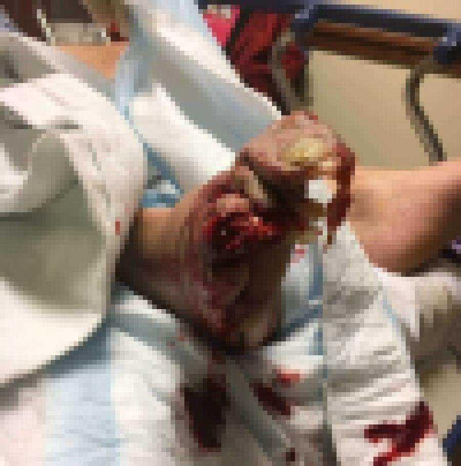 【グロ注意】重さ21㌧の機械部品に足を潰された作業員、グチャグチャになる・・・・・(画像)・2枚目