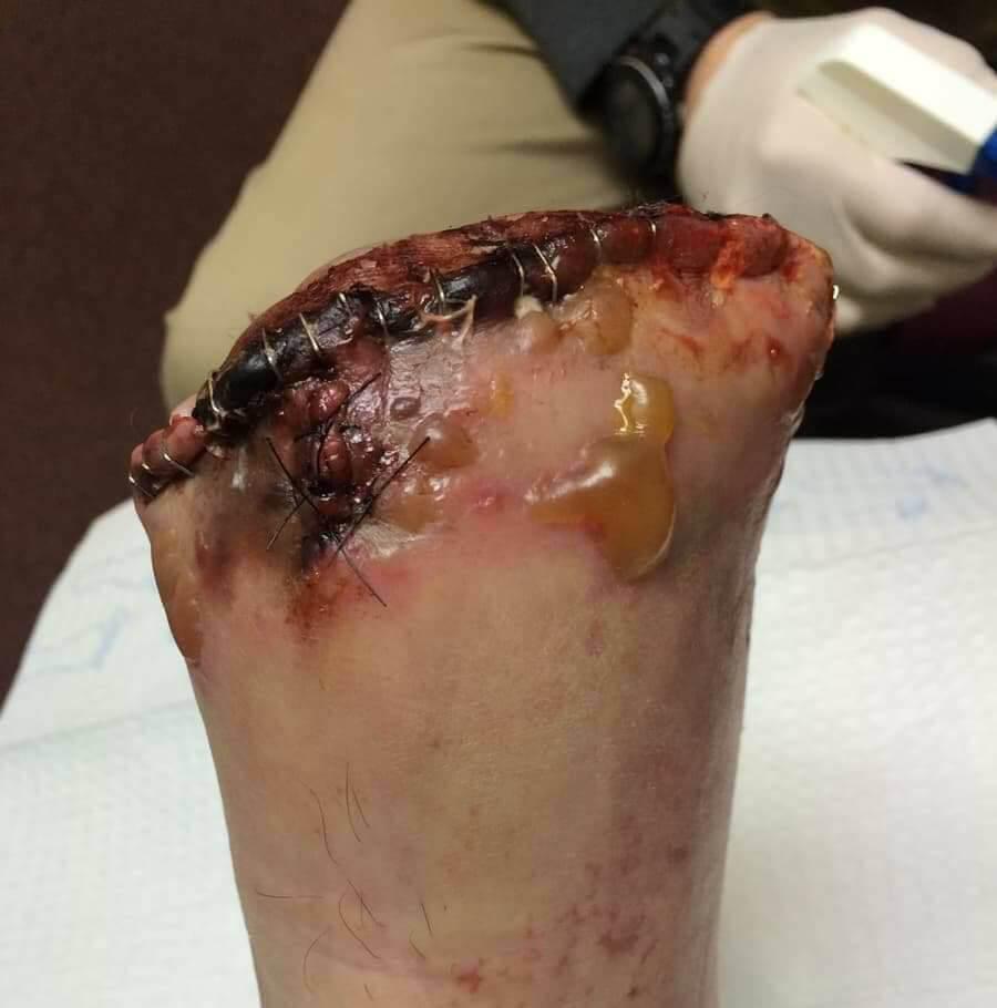 【グロ注意】重さ21㌧の機械部品に足を潰された作業員、グチャグチャになる・・・・・(画像)・5枚目