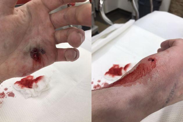 【衝撃】銃の整備中に誤って自分の手を打った男性、消毒方法が怖過ぎる・・・・・(動画)・1枚目